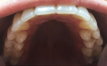 Top of Teeth